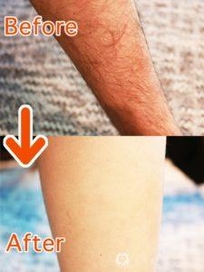 ビダンザロジックの使用前と使用後の除毛効果