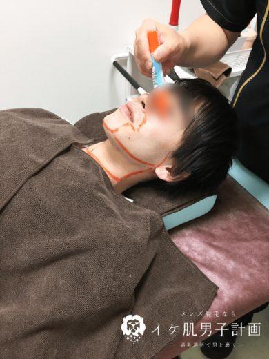 髭脱毛時にマーカーで部位を確認される様子 ゴリラクリニック