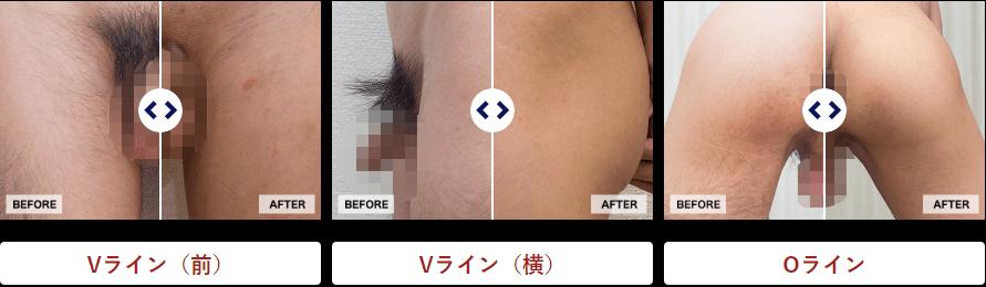 ゴリラクリニックのVIO(陰部)脱毛効果写真