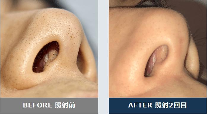 メンズリゼクリニックの鼻毛脱毛効果 施術前と2回目の様子