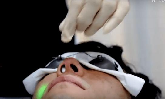 メンズリゼクリニックでの鼻毛脱毛は鼻の穴に綿を入れて粘膜を守る