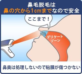 鼻毛脱毛は鼻の穴から1cmまでなので粘膜が傷つかず安全にできる