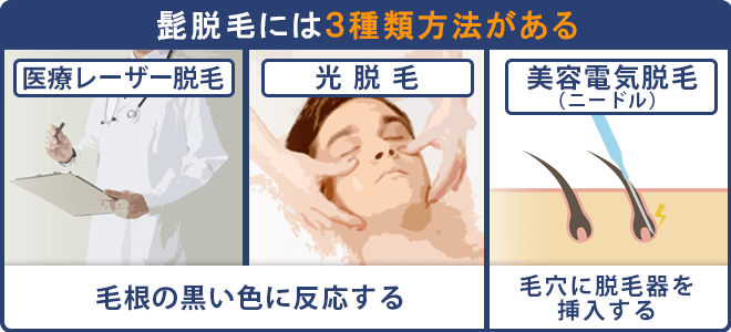 ヒゲ脱毛には3種類の脱毛方法がある