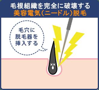 美容電気(ニードル)脱毛は毛根組織を完全に破壊する