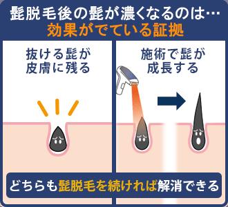髭脱毛後にヒゲが濃くなるのは、効果が表れている証拠
