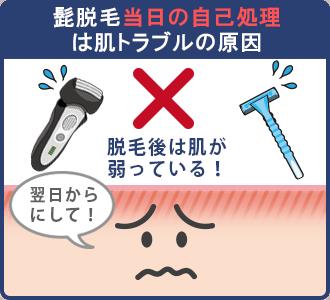 髭脱毛当日の自己処理は肌トラブルの原因となる