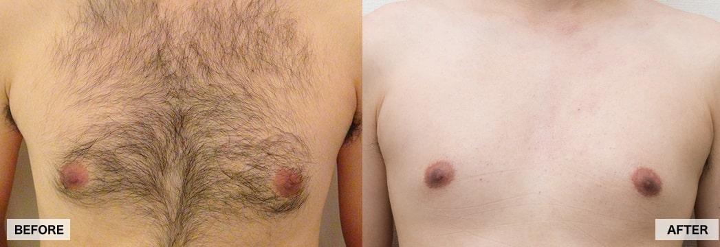 ゴリラクリニックの胸毛脱毛の写真