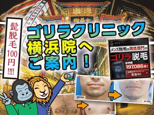 「ゴリラクリニック横浜院」の効果は神奈川随一!口コミからわかる真の評判