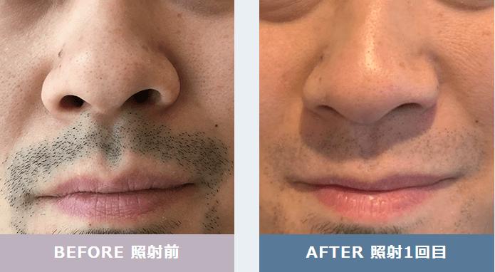 メンズリゼクリニックの髭脱毛効果の写真