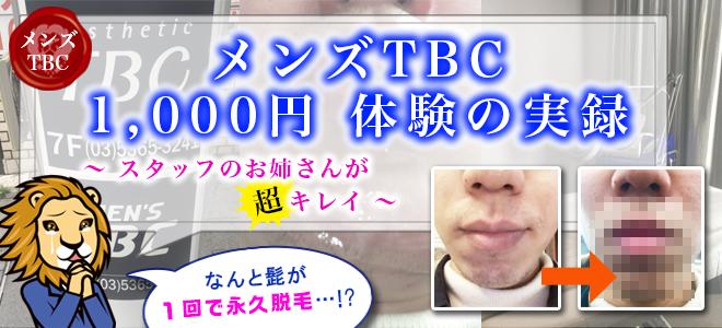 メンズTBCの1,000円体験実録 髭を永久脱毛してきた