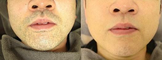 リンクスの髭脱毛効果の写真