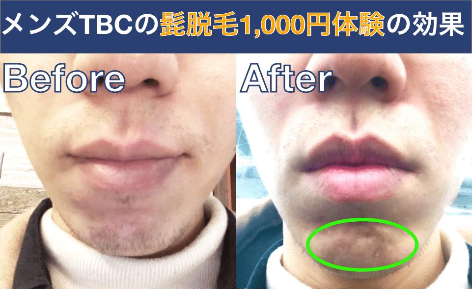 メンズTBC髭脱毛体験の効果のビフォーアフター