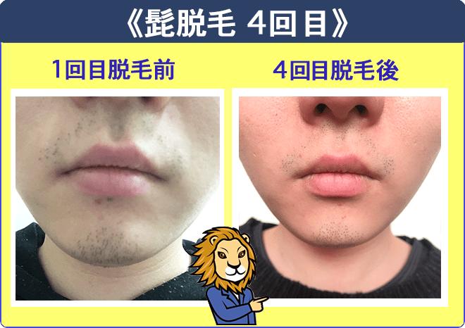 湘南美容外科クリニック髭脱毛1回目と4回目の比較