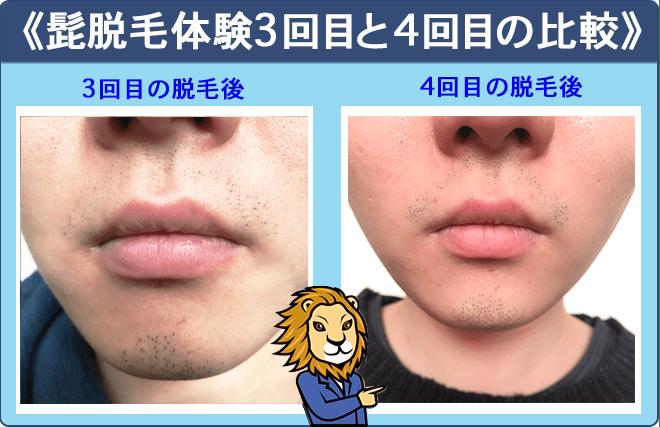 湘南美容外科クリニック髭脱毛3回目と4回目の比較