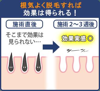 リンクスの光脱毛は根気よく続ければ効果がある
