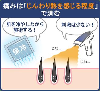 リンクスの光脱毛の具体的な痛みは「じんわり熱を感じる程度」