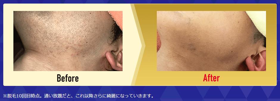 メンズクリアの髭脱毛効果