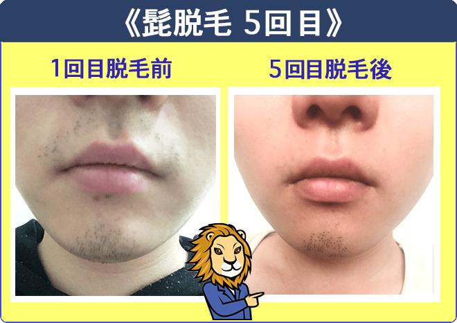 湘南美容外科クリニックのヒゲ脱毛体験1回目と5回目の比較