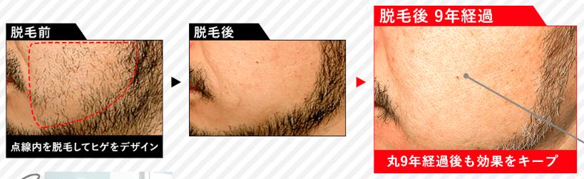 メンズTBCの髭脱毛の効果の様子
