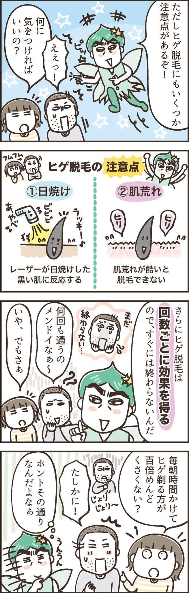 ヒゲ脱毛を4コマ漫画で解説「ヒゲ脱毛の注意点」