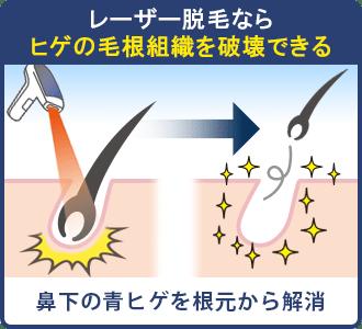 レーザー脱毛ならヒゲの毛根組織を破壊できる