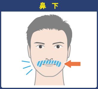 【髭:部位ごとの施術範囲】鼻下